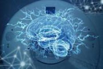 """用""""成为AI""""来对抗AI,马斯克的脑机是不是个伪命题?"""